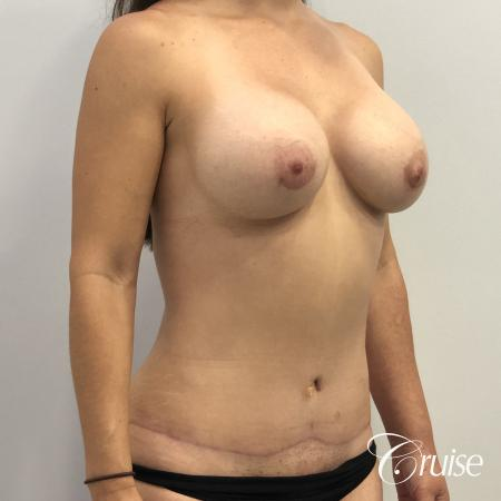 Breast Augmentation, Tummy Tuck -  After Image 3