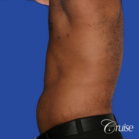 best liposuction abdomen and flanks on a male patient -  After Image 3