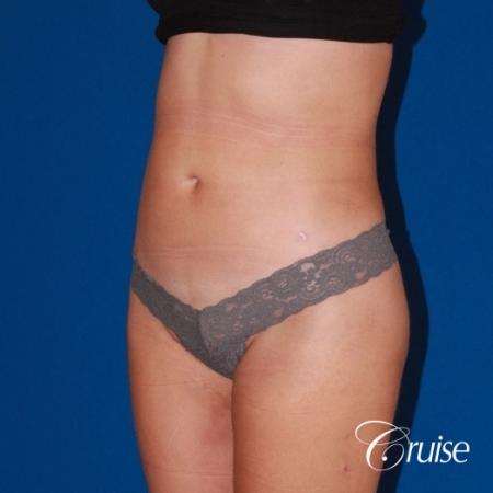 liposuction love handles and tummy -  After Image 2