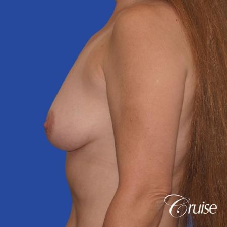 best breast lift donut scars in Newport Beach - Before Image 2