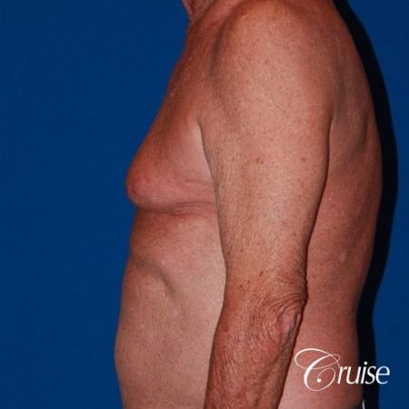 free nipple graft gynecomastia on old man - Before Image 3