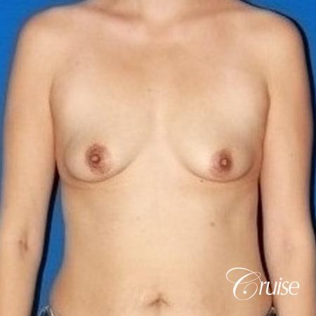 best breast lift anchor with high profile silicone 425cc - Before Image 1