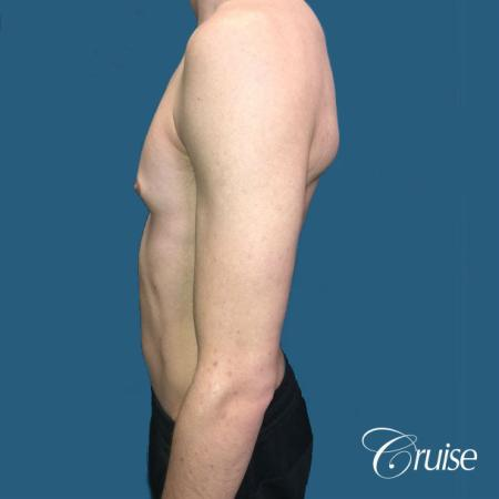 Top Gynecomastia Specialist Dr. Cruise - Before Image 2