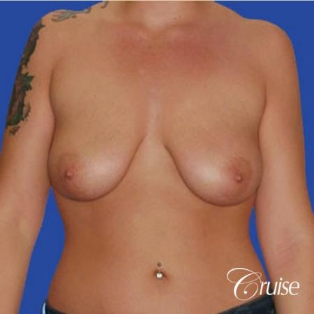 best before and after of silicone breast lift anchor in Newport Beach - Before Image 1