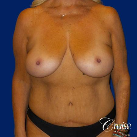 Breast Lift Anchor W/ Silicone Implants On Mature Woman - Before Image 1