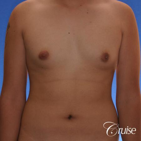 best gynecomastia surgery with plastic surgeon, Dr. Cruise - Before Image 1