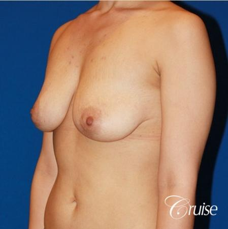 breast lift anchor with saline implants on young girl - Before Image 2
