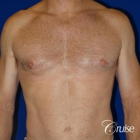 best gynecomastia results on 45 year old -  After Image 1