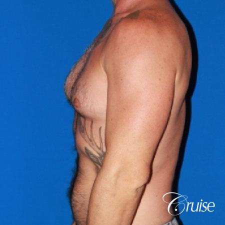 Moderate Gynecomastia -Areola Incision - Before Image 5
