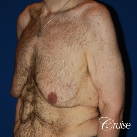 severe weight loss gynecomastia upper body lift - Before Image 2