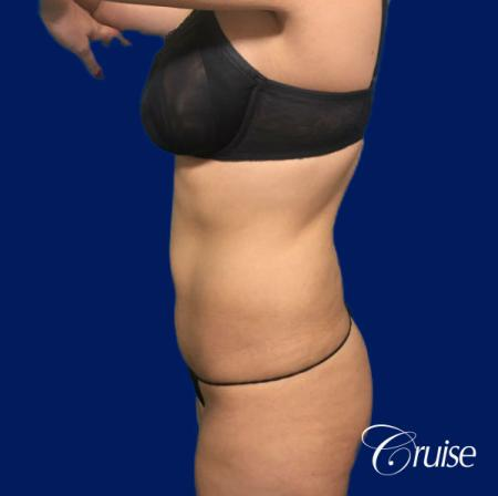 Tummy Tuck Standard Incision - Before Image 2