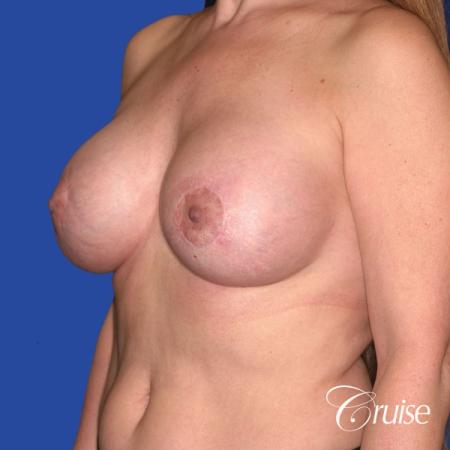best breast lift donut scars in Newport Beach -  After Image 4