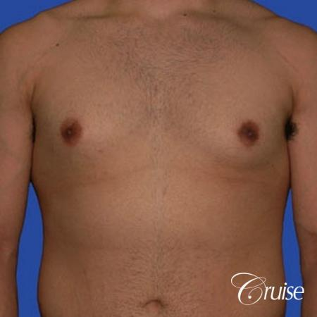 minor gyne young adult with best scars - Before Image 1