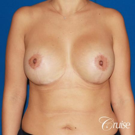 revision breast lift anchor with saline implants -  After Image 1