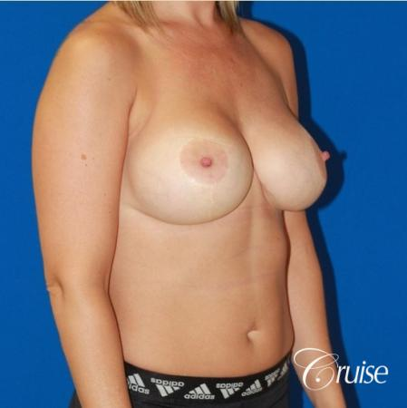 best before and after of breast lift anchor with high profile saline augmentation -  After Image 4
