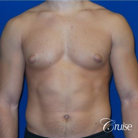 Mild Gynecomastia -Areola Incision - Before Image 1