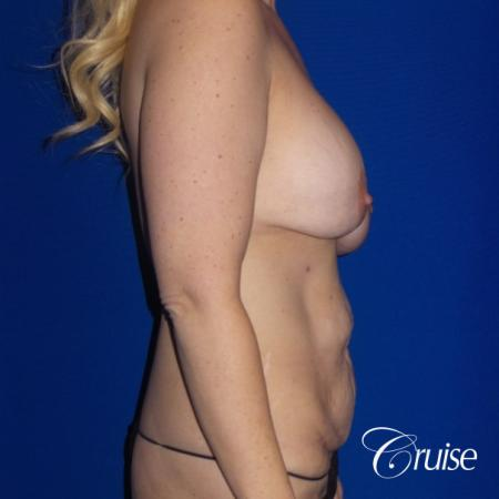 Circumferential Tummy Tuck, Breast Lift Anchor W/ Silicone - Before Image 3