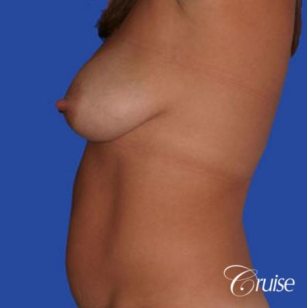 best silicone breast reduction surgery scars - Before Image 2