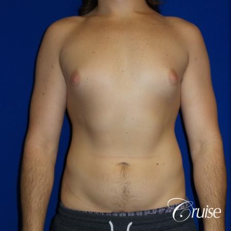 Mild Gynecomastia- Areola Incision - Before Image 1