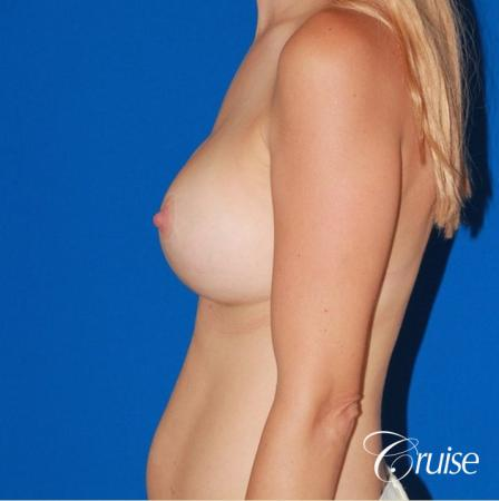 best breast revision for closer cleavage -  After Image 2