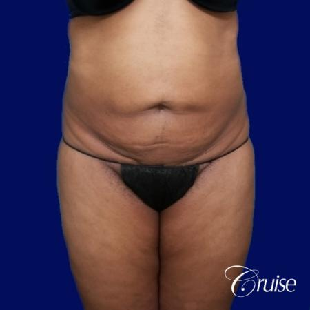 Liposuction Flanks - Before