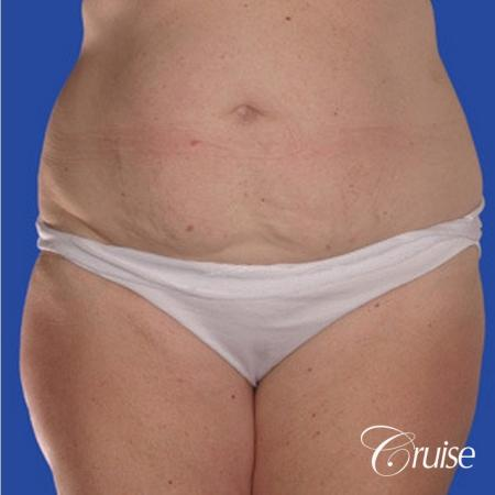 best pictures of liposuction abdomen with skin laxity - Before and After Image 3