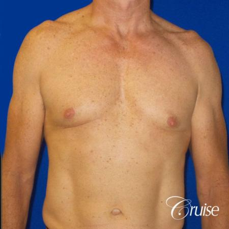 Top Gynecomastia surgeons - Before Image 1