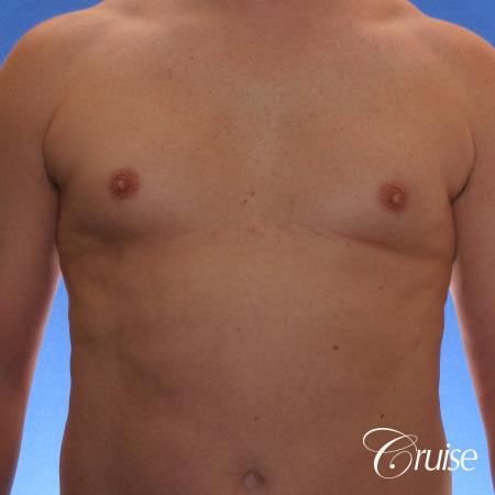male adult with gynecomastia - Before Image 1