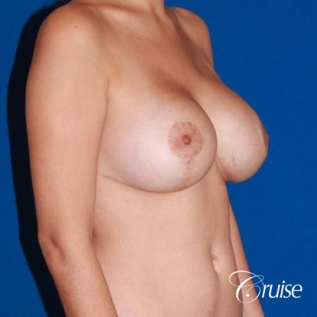 best results for breast lift anchor with saline implanta -  After Image 4