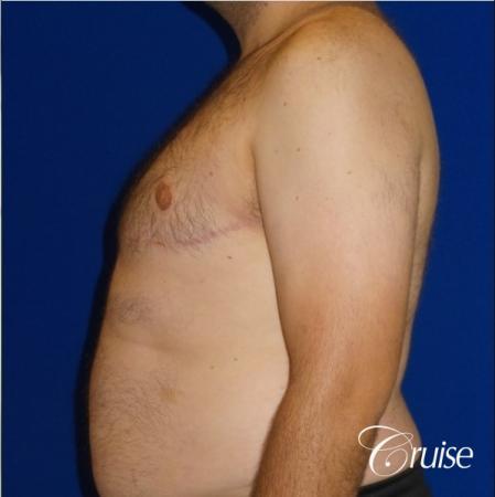 Severe Gynecomastia- Free nipple Graft  - After Image 3