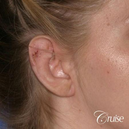 best otoplasty photos by top plastic surgeon -  After Image 2