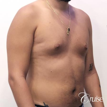 gynecomastia correction orange county - Before and After 5