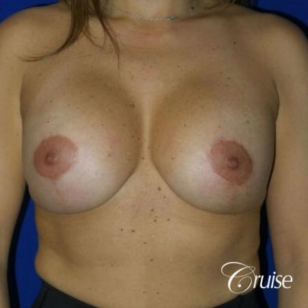 Breast Lift Anchor W/ Silicone Implants On Young Woman - After 1