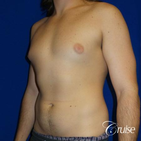 Mild Gynecomastia- Areola Incision - Before Image 2