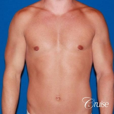 32 yo with Gynecomatia and Puffy Nipple -  After Image 1