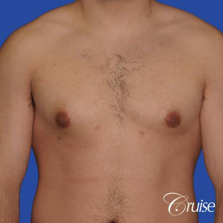 mild case of gynecomastia on adult - After Image 1