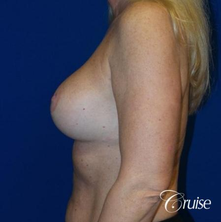 Breast Lift - Saline Augmentation - After Image 3
