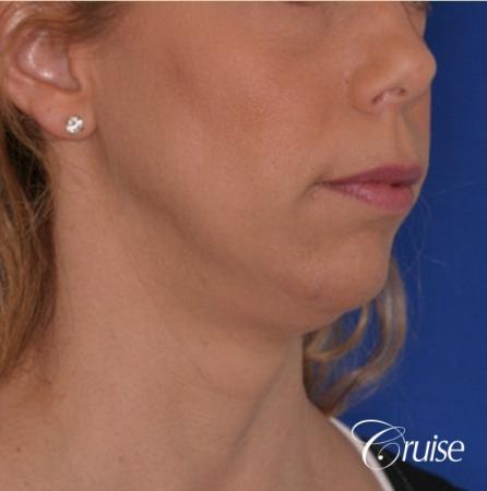 best medium anatomic chin implant on female - Before Image 3