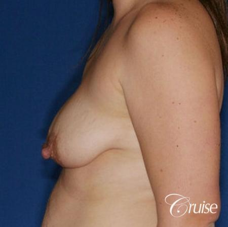 best results on young woman for breast lift anchor with saline augmentation - Before 2