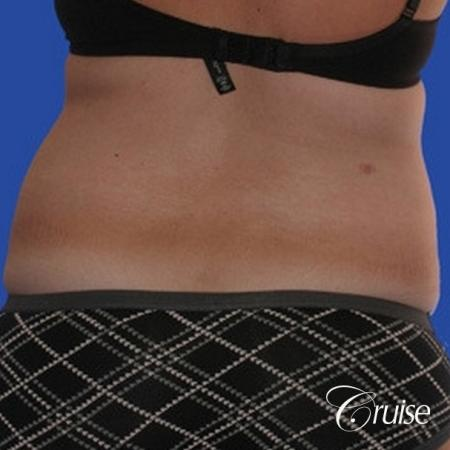Liposuction: Patient 25 - Before and After Image 3