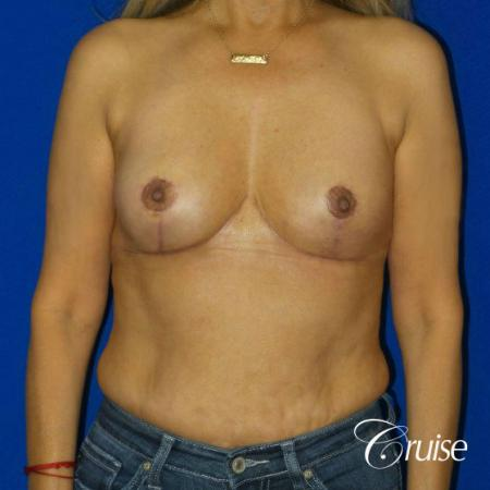 Best Breast reduction results and recovery -  After Image 1