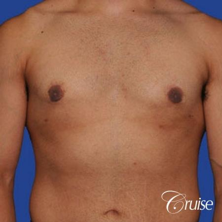 minor gyne young adult with best scars -  After Image 1