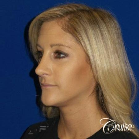 Best Rhinoplasty results Newport Beach CA -  After Image 3