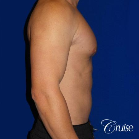Gynecomastia puffy nipples cost - Before and After Image 3