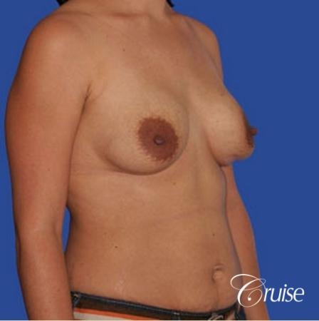 mini tummy tuck with silicone breast revision - Before and After Image 3