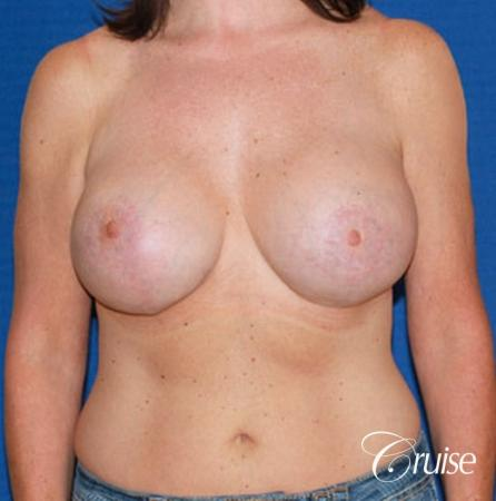 best breast reduction surgery with saline implants -  After Image 1
