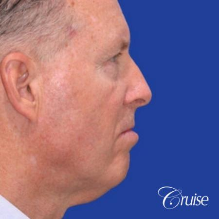 62 year old with chin implant and neck lift - Before and After Image 3