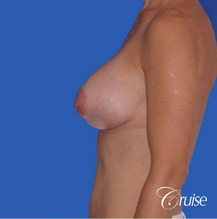 best breast lift anchor with silicone implants -  After Image 2