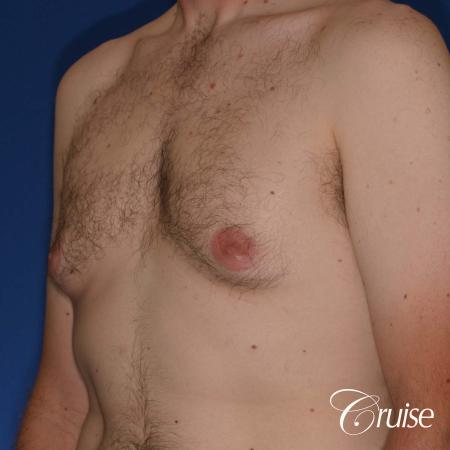 adult male with moderate gynecomastia gets donut lift - Before Image 3