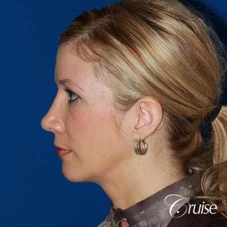 female patient with best chin implant scar -  After Image 2